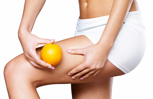 cellulite-reduction