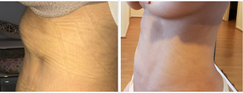 before_after_massage
